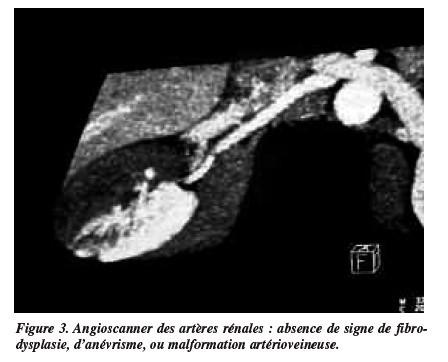 thrombose renale symptomes