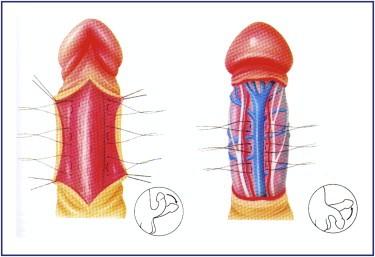 grosse veine dans le pénis