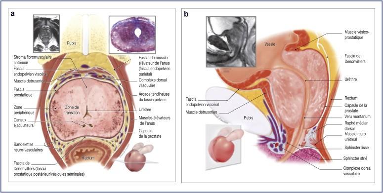 millin operation prostate